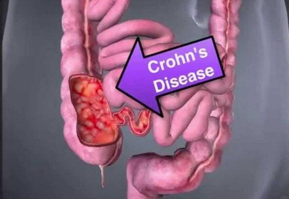 Crohns Disease Causes
