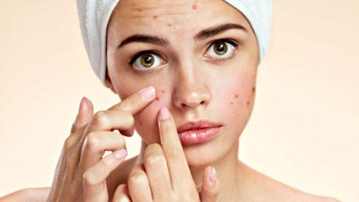 Acne Treatment Clinic In Mumbai Lucknow