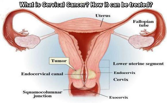 Curvical Cancer Treatment Lucknow