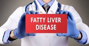 Fatty Liver Treatment