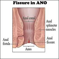Fissure In Ano
