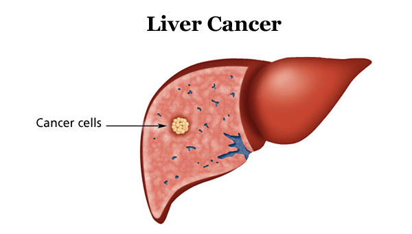 how to create cancer in human body