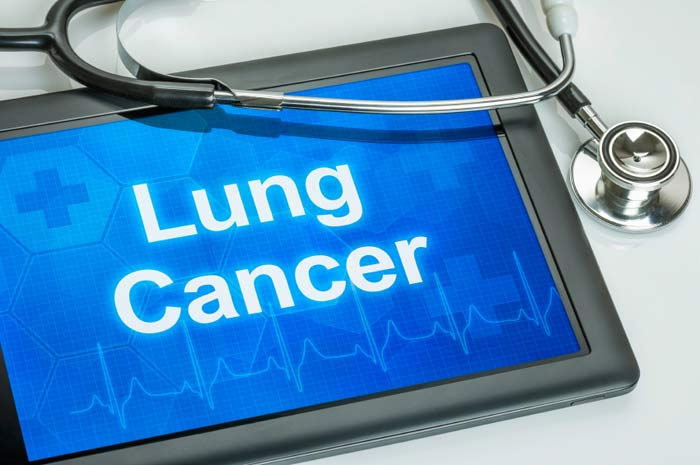 Lung Cancer On Ipad