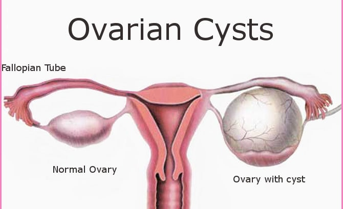 Ovarian Cysts Homeopathy Treatment Ovarian Cysts Treatment