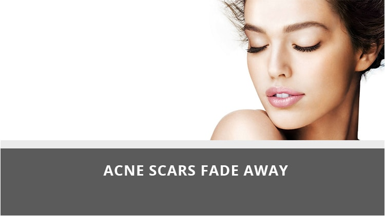 Acne Treatment Clinic In Mumbai