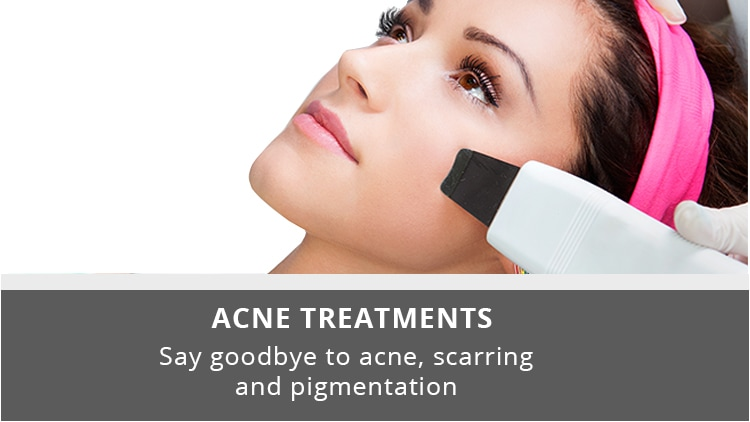 Acne Treatment Clinic In Lucknow