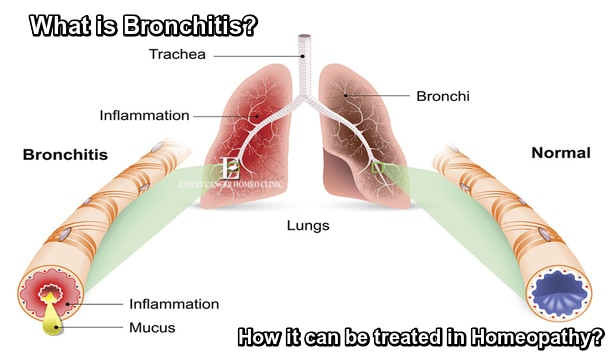 Bronchitis Homeopathy Treatment