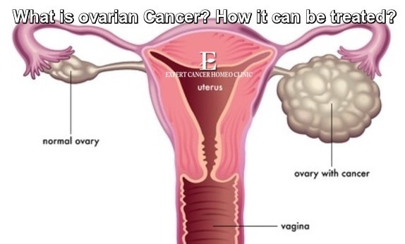 Ovarian Cancer Homeopathy Treatment In Mumbai Delhi Lucknow Expert Cancer Homoeo Clinic