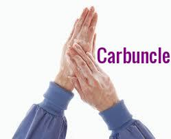 Carbuncleup
