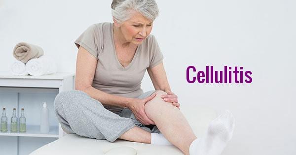 Cellulitisup