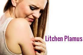 Litchenplamus